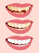 stock photo of rotten  - Progressive Stages Of Tooth Decay - JPG