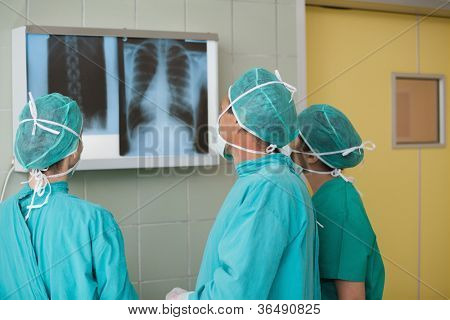 Medical team looking at a X-ray in operating theater