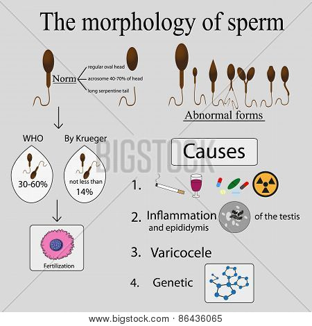 Infographics sperm morphology.