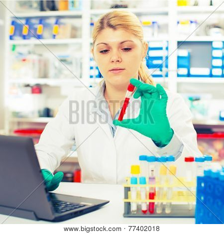 A woman laboratory assistant uses a computer research blood sample