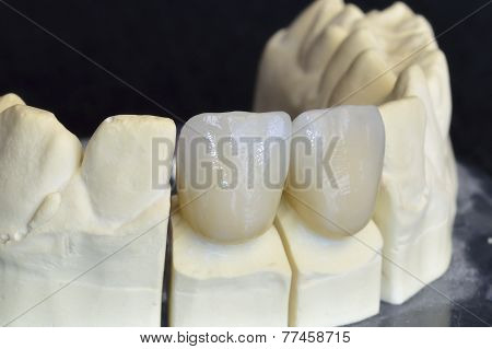 Upper Incisors In Zirconium
