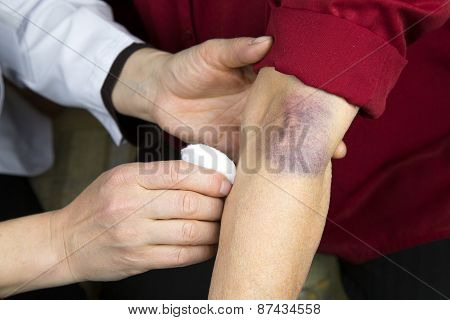 Large Bruise On Human Arm