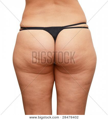 Closeup of cellulite skin at woman buttocks on a white