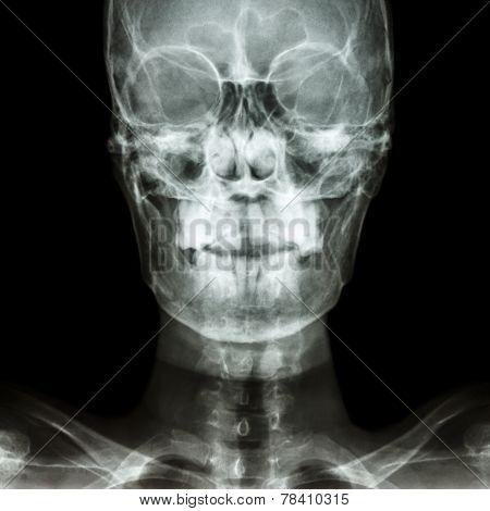 Normal Human's Skull