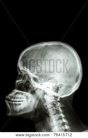 Human's Skull And Blank Area At Upper Side For Fill Text