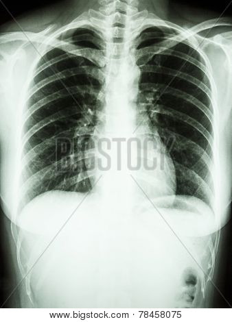 Film chest X-ray PA upright show normal human' chest