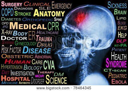 X-ray skull and