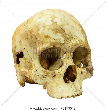 Human Skull Fracture(side) (mongoloid,asian) On Isolated Backgro