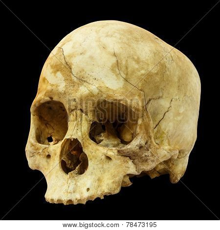 Human Skull Fracture(side) ( Mongoloid , Asian ) on isolated background