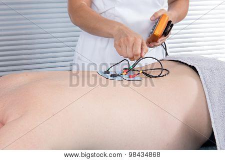 Man With Electrostimulator Electrodes On His Back