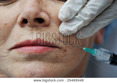 Senior woman getting skin care injection