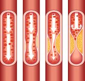 stock photo of fat cell  - vienna human atherosclerosis - JPG