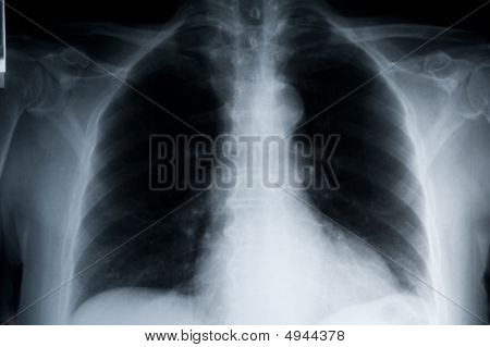 Xray Lungs Landscape