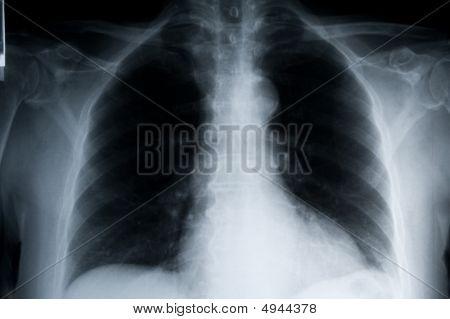Paisagem de pulmões de xray