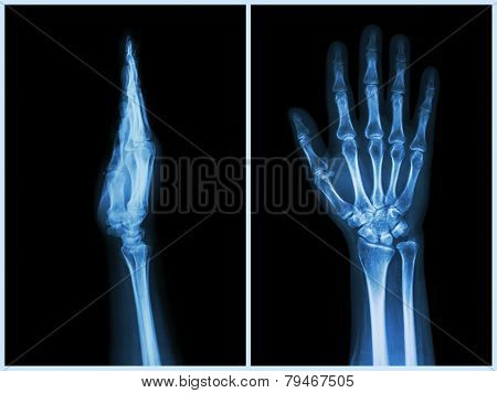 X-ray Hands ( Front & Side View ) : Normal Human Hands