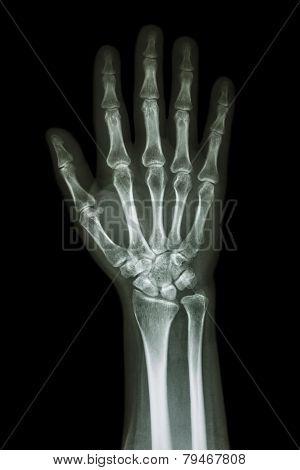 X-ray Hand & Forearm