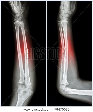 Fracture Shaft Of Ulnar Bone ( Forearm Bone )  :  ( Front And Side View )