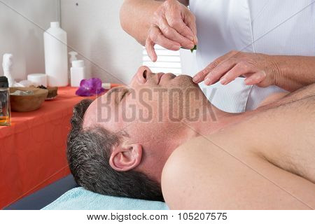 Adult Physiotherapist Is Doing Acupuncture On The Back Of A Male Patient.