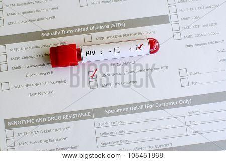 HIV blood sample