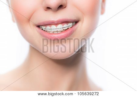 Woman with teeth braces