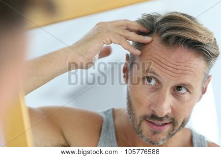 Middle-aged man concerned by hair loss