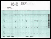 Ekg real anormal