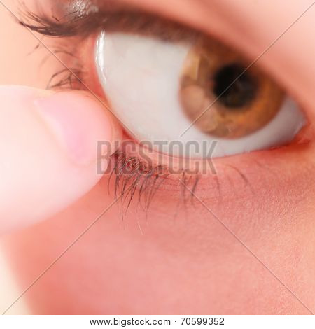 Part Of Face Human Eye Pain Foreign Body
