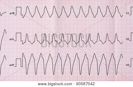 Ecg With Paroxysm Correct Form Of Atrial Flutter With Atrioventricular Conduction 1: 1