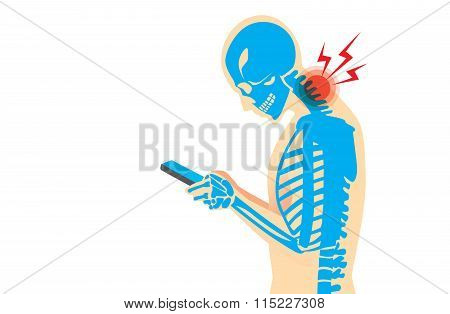 Neck Pain from Smartphone