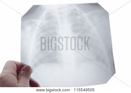 Medical stethoscope and x-ray or roentgen image. Close-up shot of lung radiography