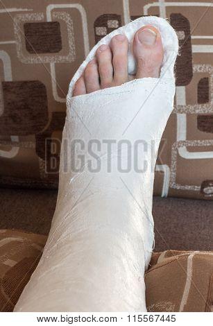 Broken Ankle In Gypsum