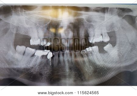 Dental X-ray. Radiograph Of A Human Jaw.