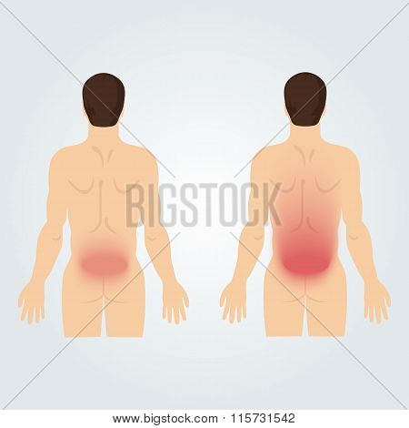 Two Silhouettes Of Men From The Back: Increased Back Pain.