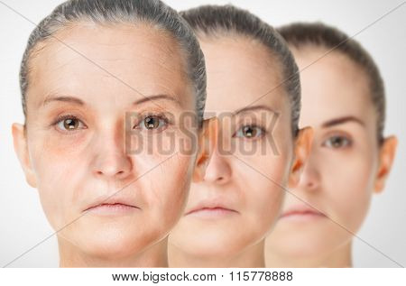 Aging Process, Rejuvenation Anti-aging Skin Procedures