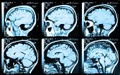 stock photo of magnetic resonance imaging  - Health medical image of an MRI  - JPG