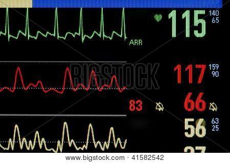 Medical Monitor. Close-up Photos.