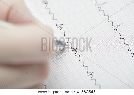 Analyzing Of Ecg. Hand With A Pen On The Ecg.