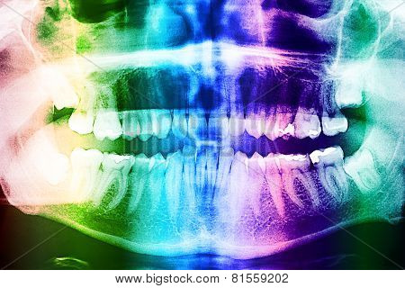 Dental X-Ray Of Teeth