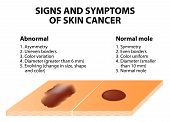 foto of pigment  - Signs and symptoms of skin cancer - JPG