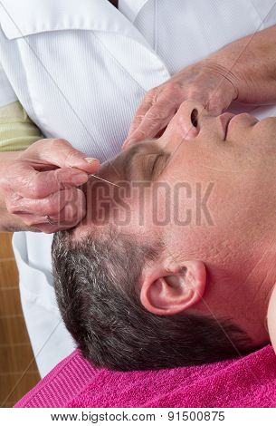 Acupuncturist Prepares To Tap Needle Around Face  Of Man