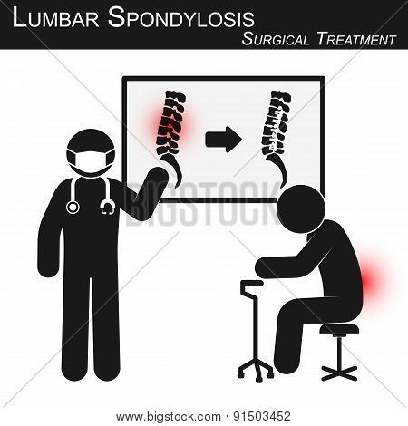 Doctor Explain About Surgical Treatment Of Lumbar Spondylosis And Show Spine Imaging