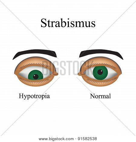 Diseases of the eye - strabismus. A variation of strabismus - Hypotropia