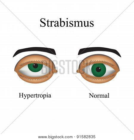 Diseases of the eye - strabismus. A variation of strabismus - Hypertropia