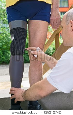 Therapist Adjusting Prosthetic Leg