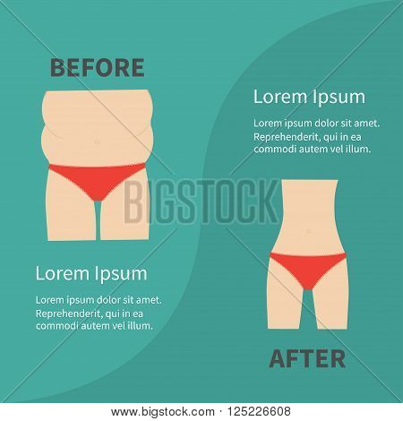 Before after infographic Woman fat and skinny figure red underwear. Healthy unhealthy lifestyle Flat design Vector illustration