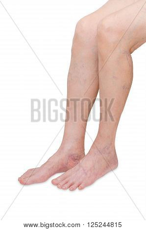 Woman legs with varicose veins on white background