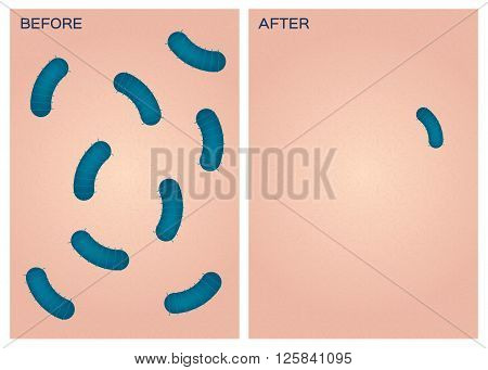 bacteria on skin vector , before after