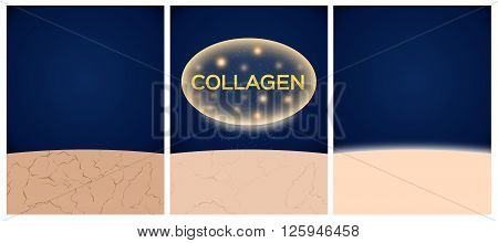 collagen and skin before and after 3 step3