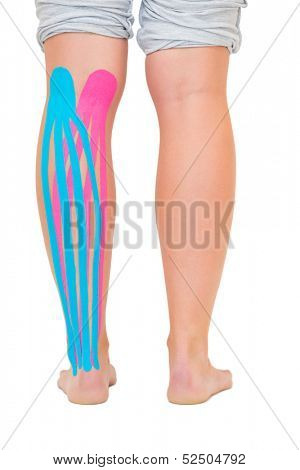 Female patients leg with applied pink and blue kinesio tape on white background