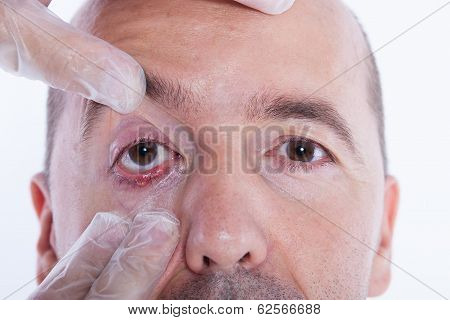 Man With An Stye